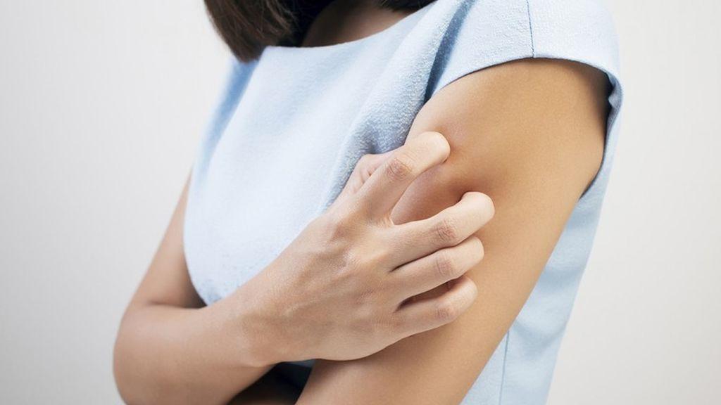 Loción de calamina para las irritaciones leves de la piel