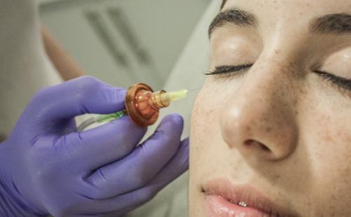 Carboxiterapia para rejuvenecer la piel, estrías, acné, celulitis y mucho más…
