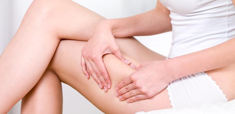 piernas con celulitis