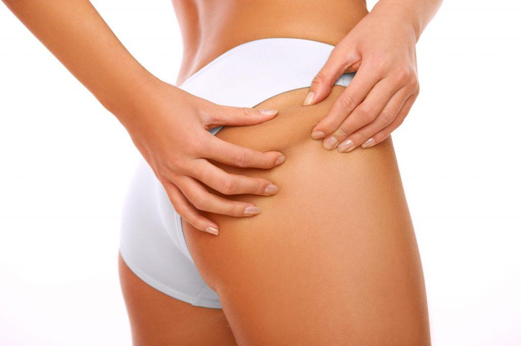 Ingredientes para evitar y prevenir la celulitis