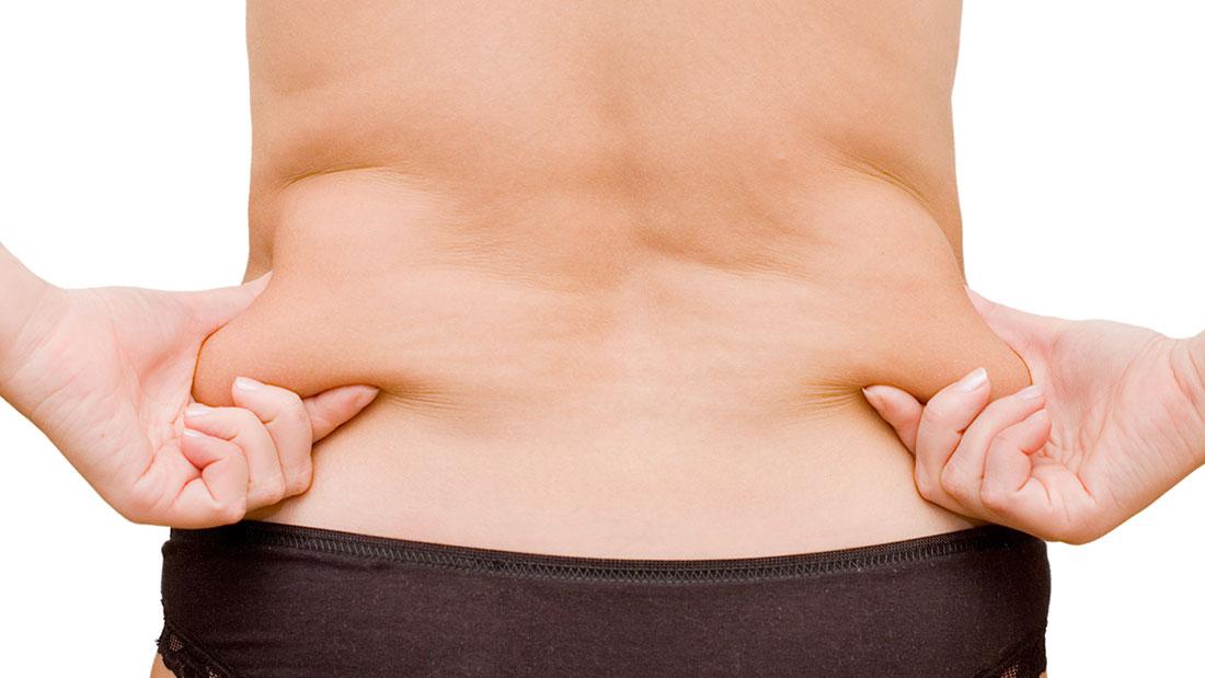 Chitosán: fibra natural para absorber grasas de la #dieta
