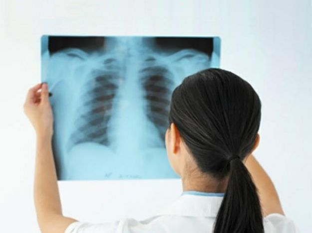 EPOC, COPD, enfermedades pulmonares y oxígeno