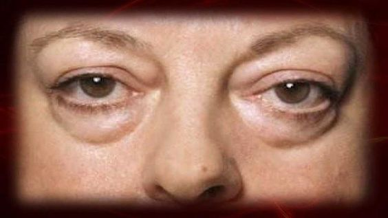 Cómo eliminar las ojeras o borrar el cansancio de la cara