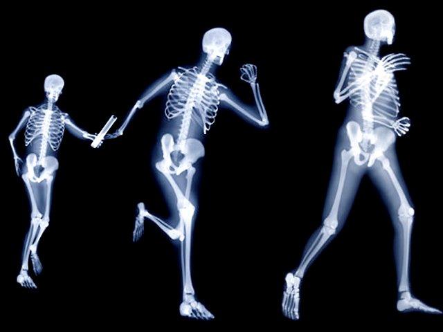 osteoporosis y huesos