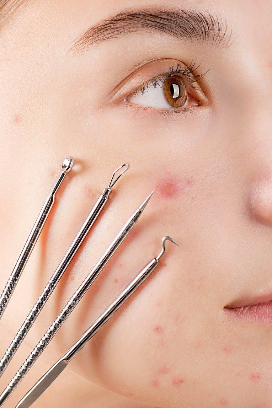 acne adulto