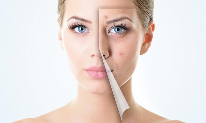 piel acné