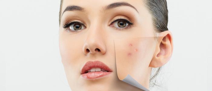 Consejos para tratar la piel grasa o con brillos