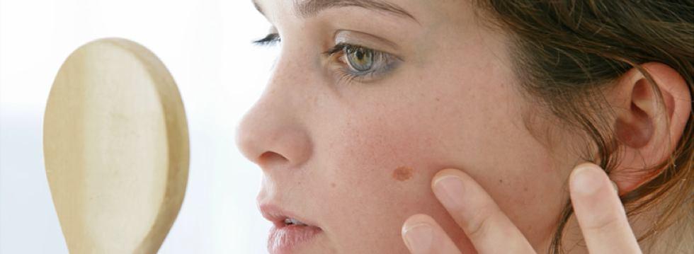 Cuidado de las pieles atópicas
