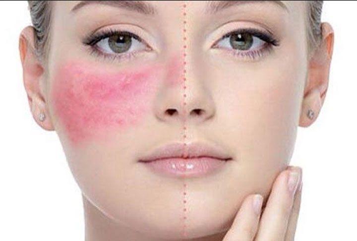 Cuperosis y rosácea: Factores, causas y tratamientos