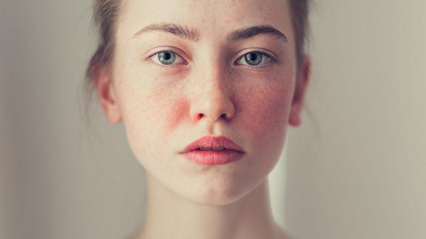 La rosácea, una enfermedad más común de lo que crees