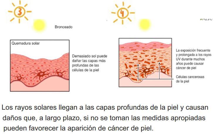 Evitar el envejecimiento de la piel y prevenir el melanoma