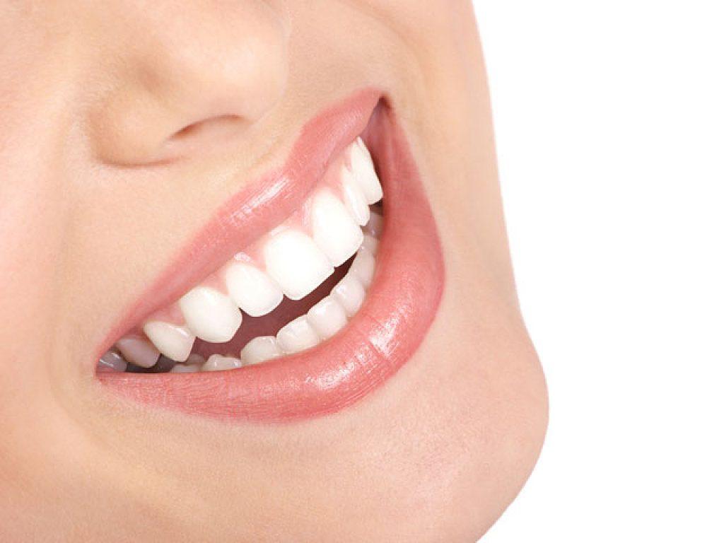 Sonrisa blanca contagiosa y feliz