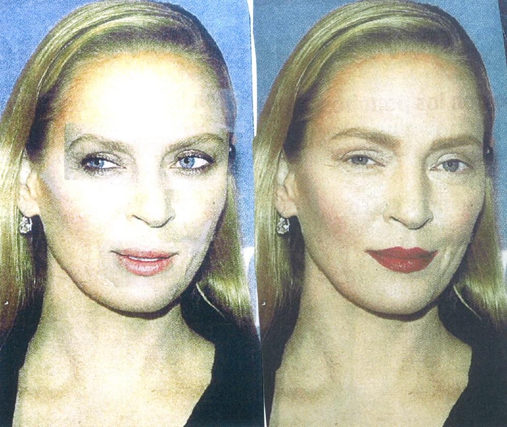 El falso efecto Uma Thurman o la cirugía invisible que se impone entre los famosos